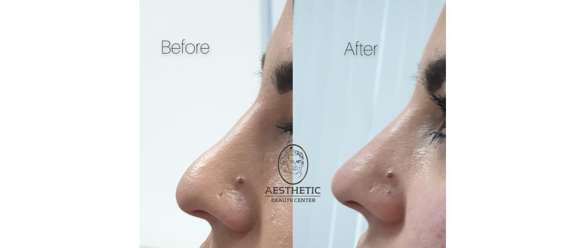 voor en na neusfillers (3).jpeg