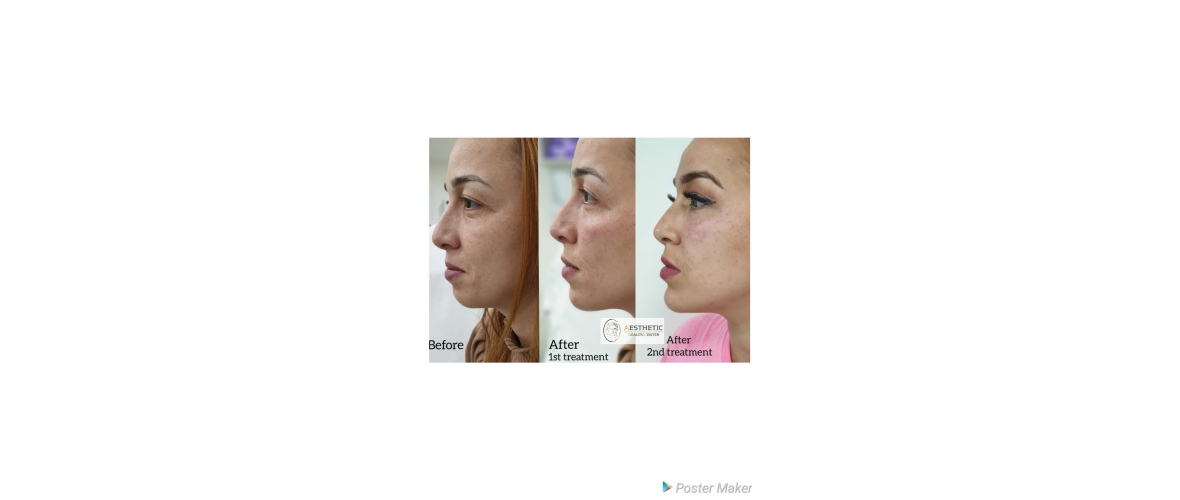 fillers-liquid-facelift-6-aesthetic-beautycenter.png