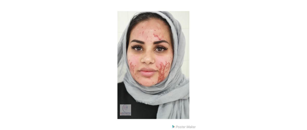prp-gezichtsbehandelingen-2-aesthetic-beautycenter.png