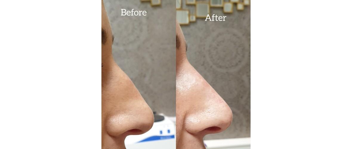 voor en na neusfillers (36).jpeg