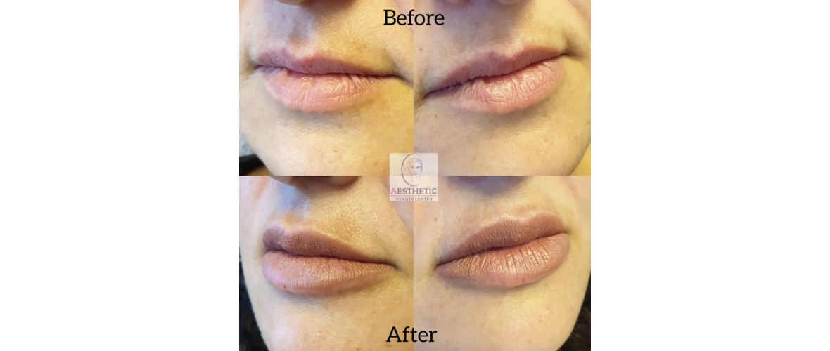 fillers-lippen-2-aesthetic-beautycenter.png