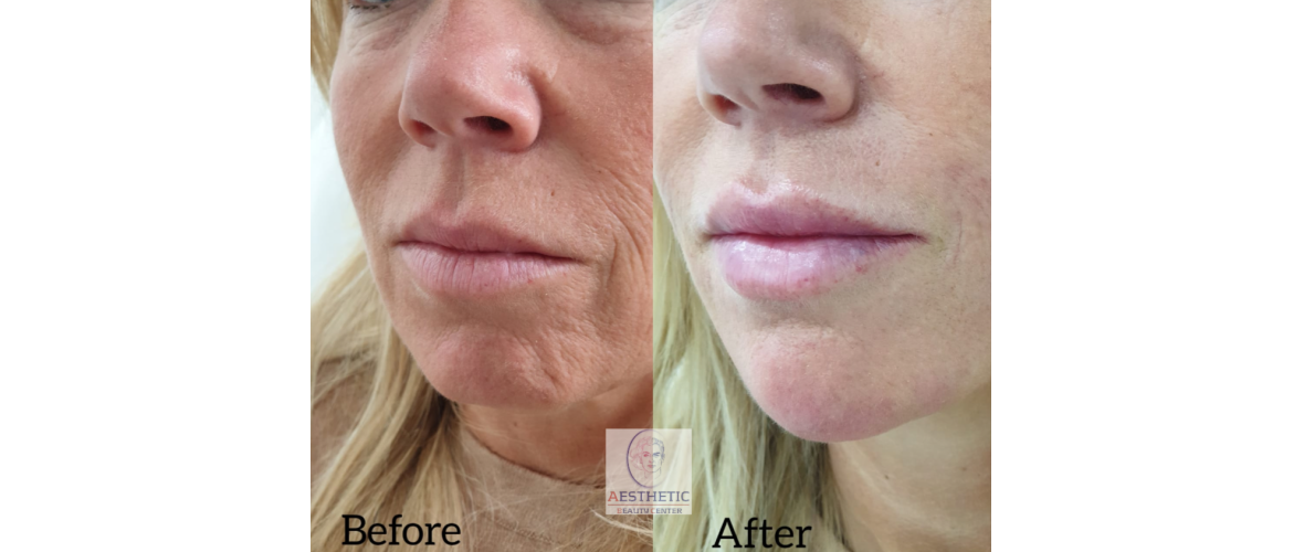 fillers-liquid-facelift-3-aesthetic-beautycenter.png