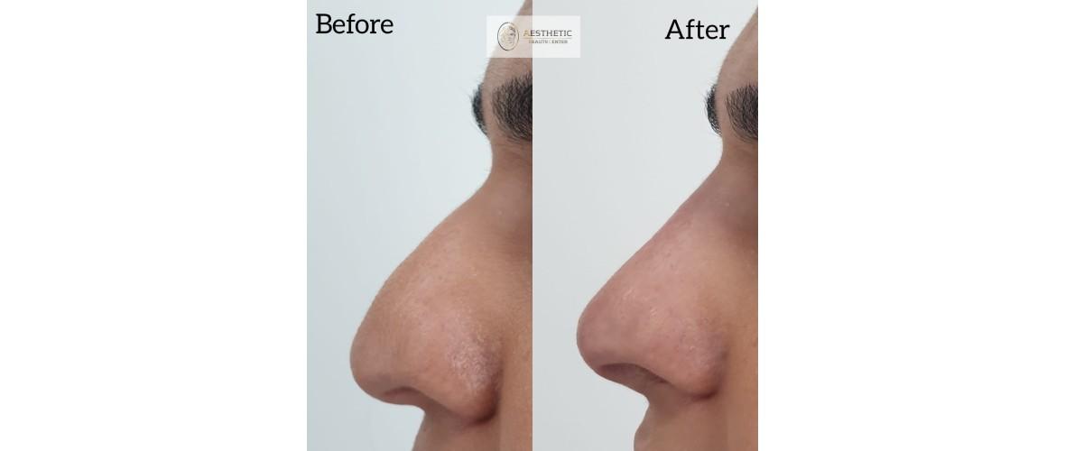 voor en na neusfillers (27).jpeg