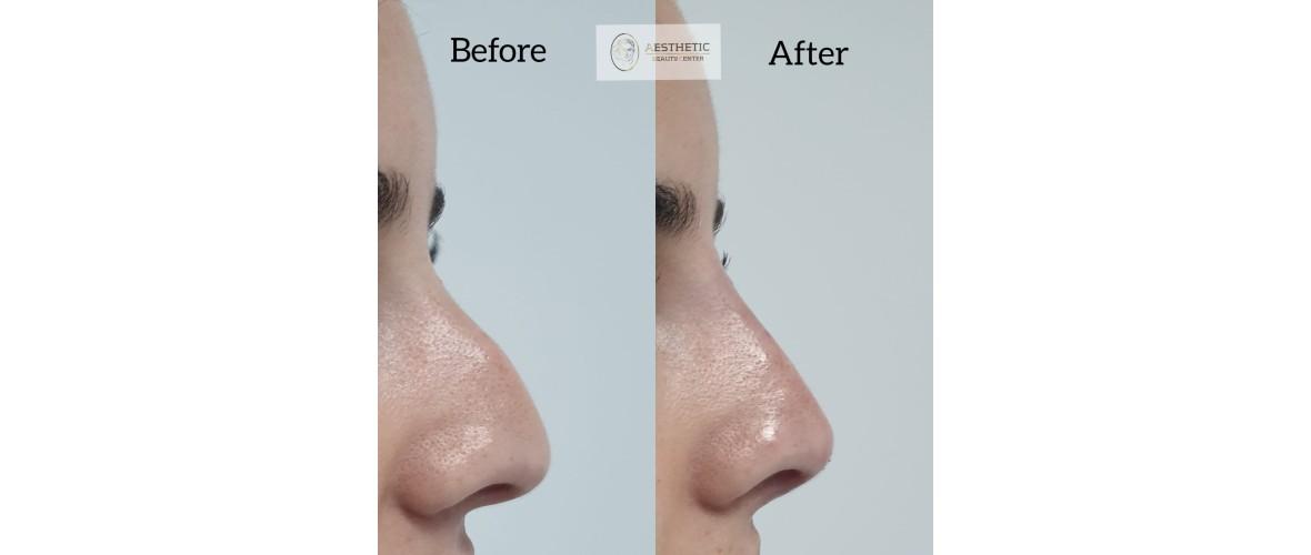 voor en na neusfillers (28).jpeg