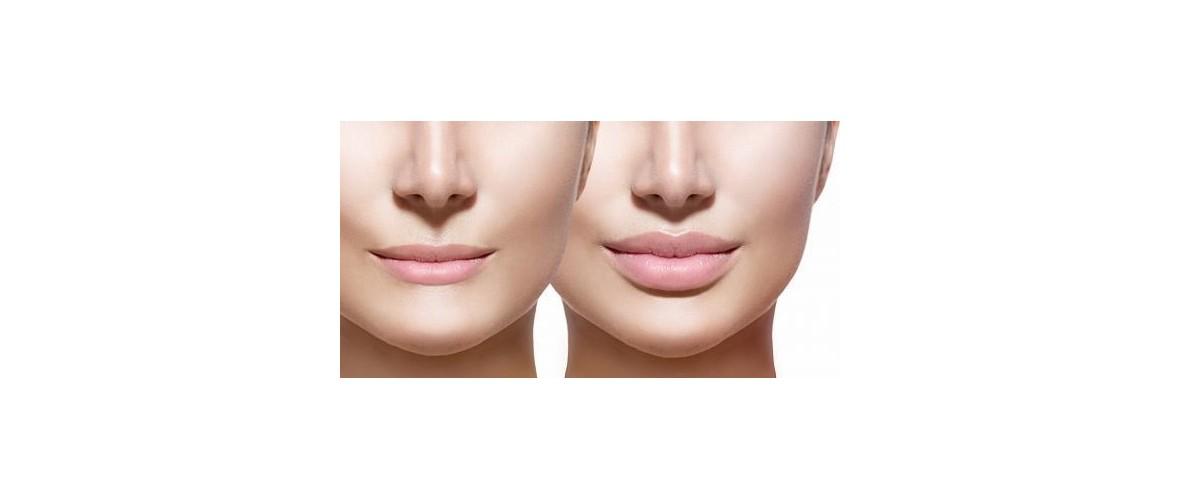 fillers-lippen-11-aesthetic-beautycenter.jpg