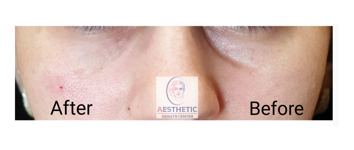 fillers-traangoot-5-aesthetic-beautycenter.png