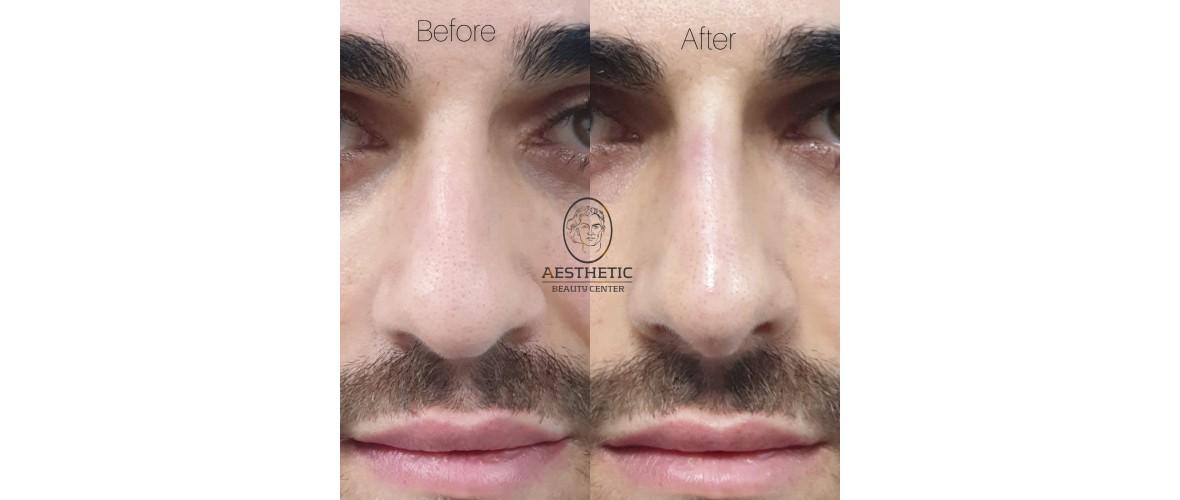 voor en na neusfillers (8).jpeg