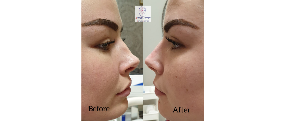 fillers-neuscorrectie-aesthetic-beautycenter.png