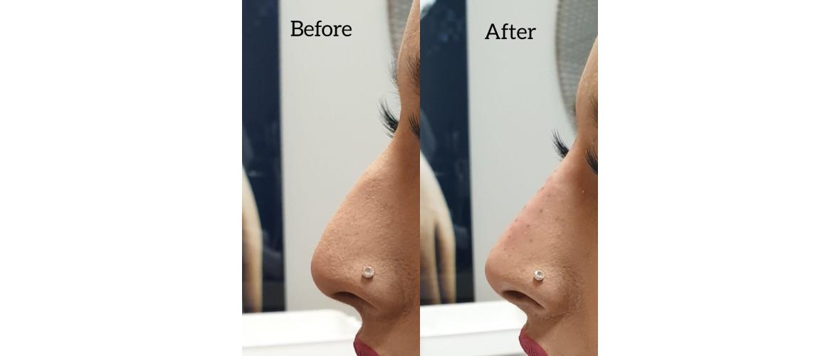 voor en na neusfillers (37).jpeg