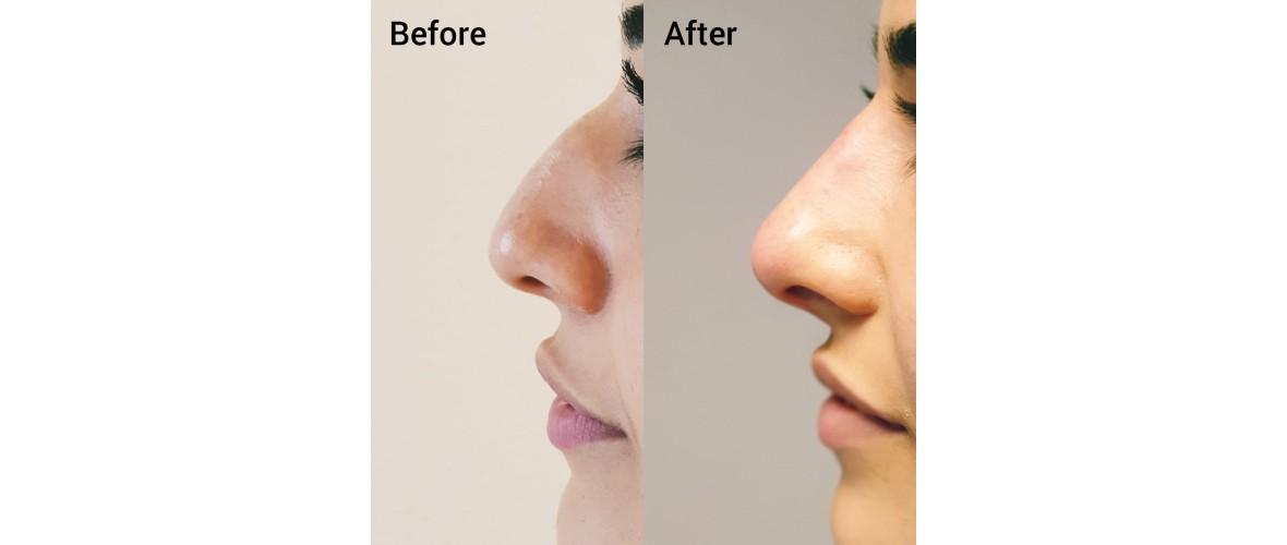 voor en na neusfillers (50).jpeg