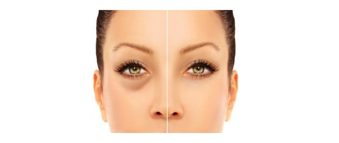 fillers-traangoot-1-aesthetic-beautycenter.jpg