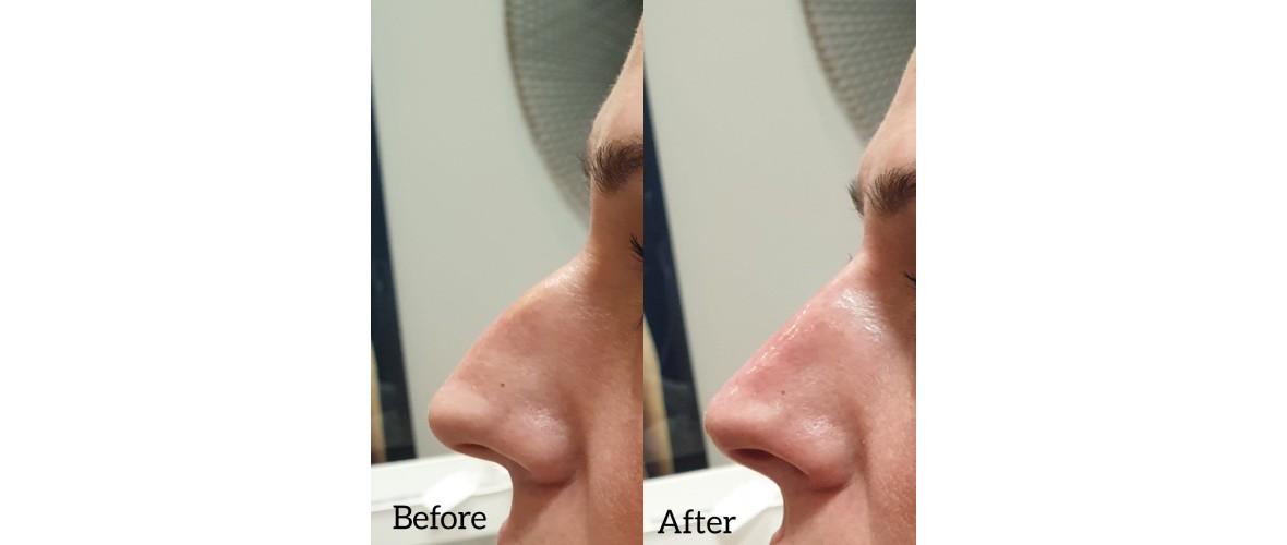 voor en na neusfillers (46).jpeg