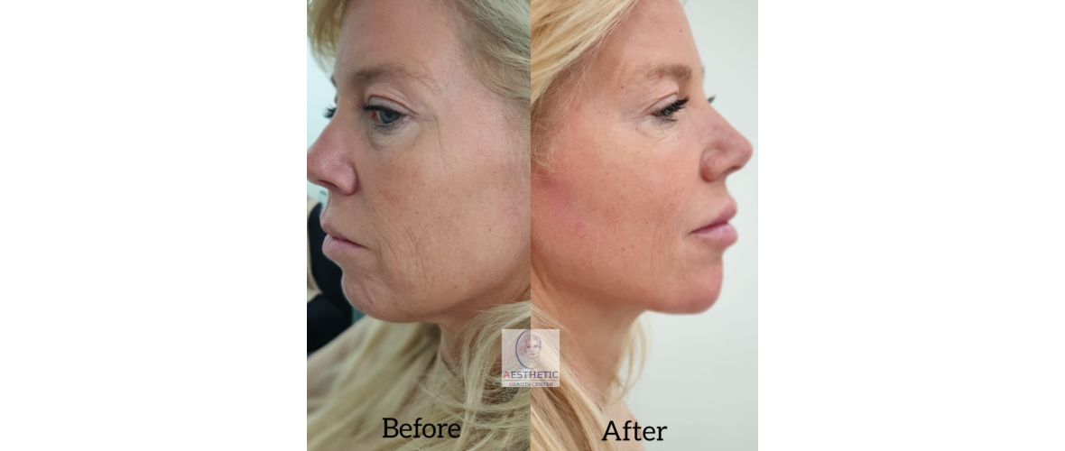 fillers-liquid-facelift-2-aesthetic-beautycenter.png