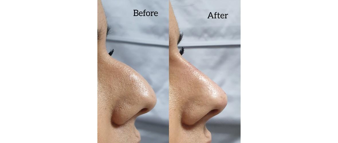 voor en na neusfillers (35).jpeg