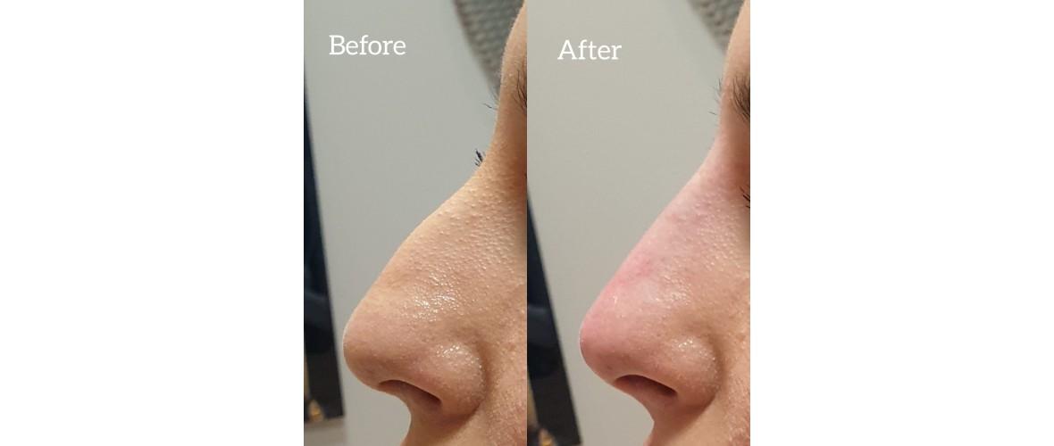 voor en na neusfillers (43).jpeg