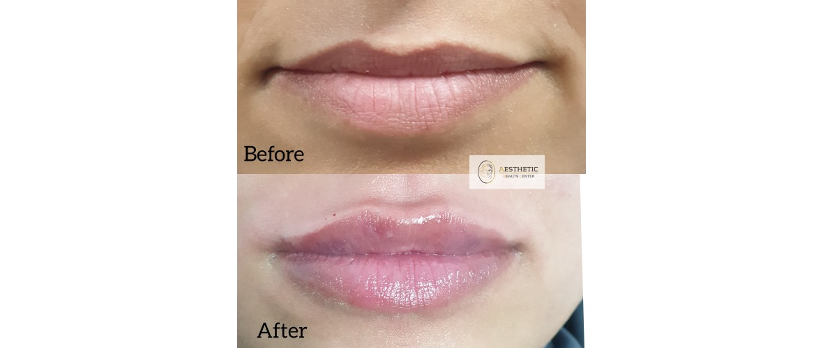 fillers-lippen-7-aesthetic-beautycenter.jpg