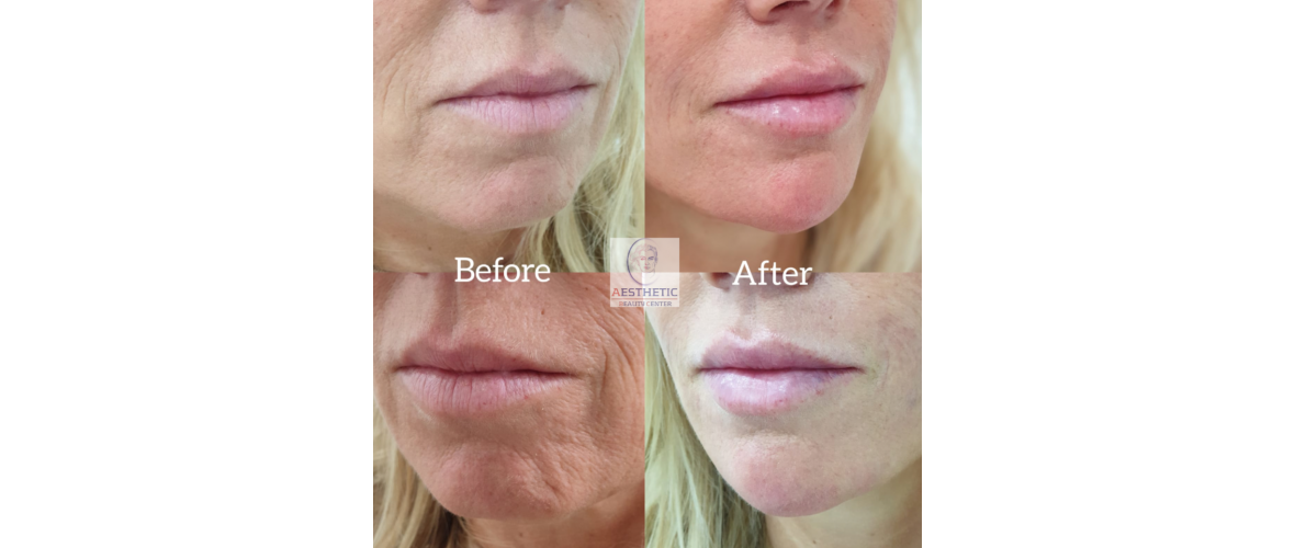 fillers-liquid-facelift-4-aesthetic-beautycenter.png