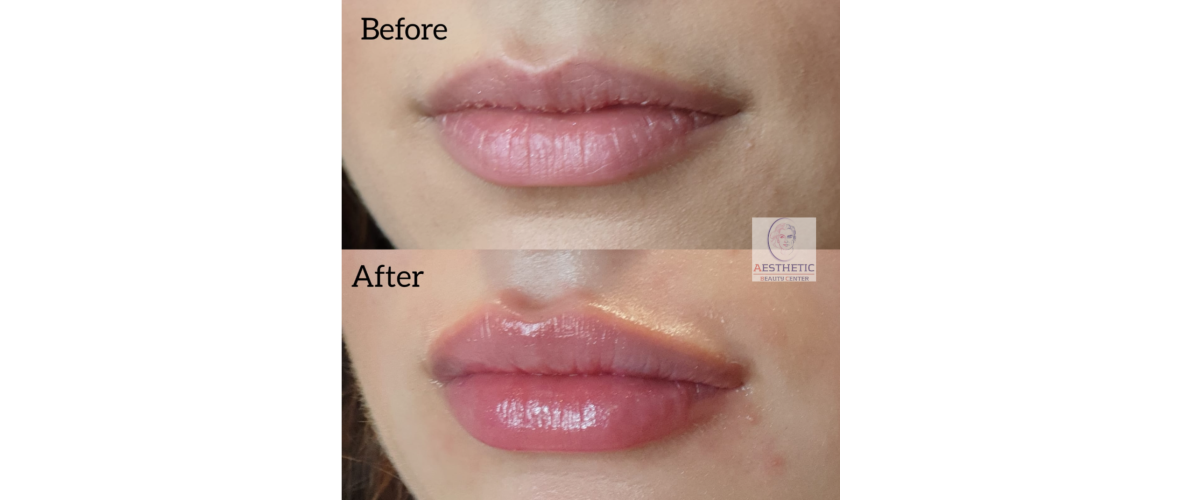 fillers-lippen-5-aesthetic-beautycenter.png