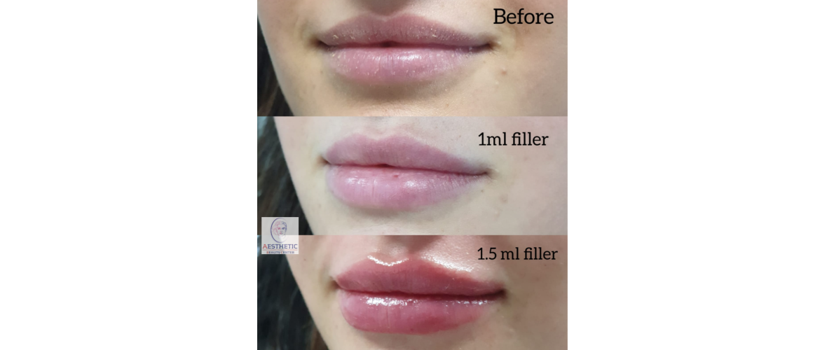 fillers-lippen-6-aesthetic-beautycenter.png