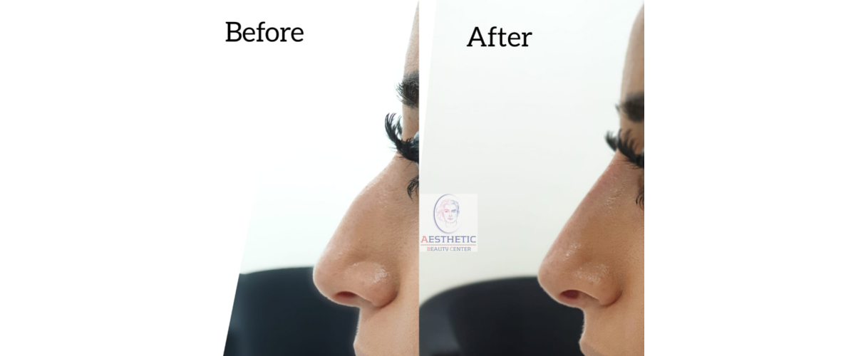fillers-neuscorrectie-2-aesthetic-beautycenter.png