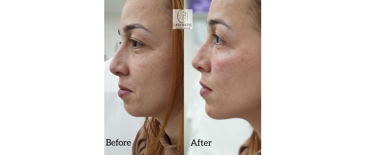 fillers-liquid-facelift-5-aesthetic-beautycenter.png