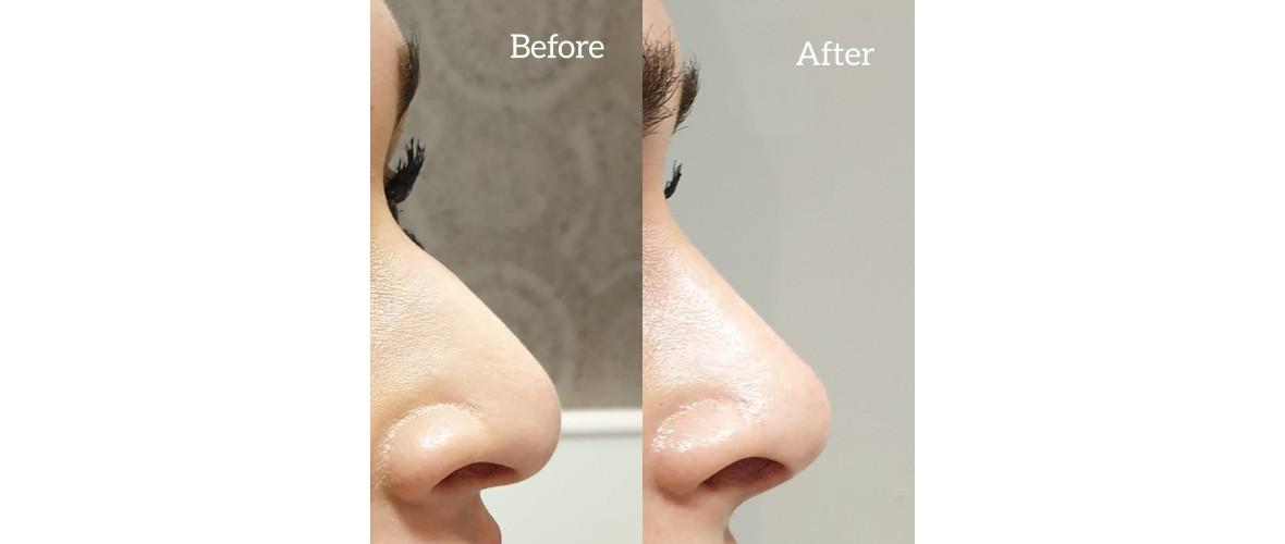 voor en na neusfillers (39).jpeg