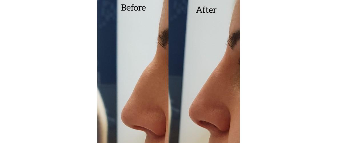 voor en na neusfillers (48).jpeg