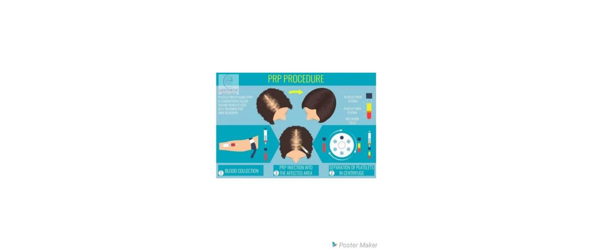 prp-haarbehandelingen-2-aesthetic-beautycenter.png